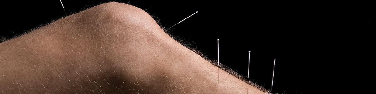 acupunture8