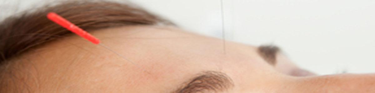 acupunture_cosmetic