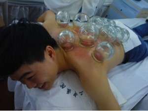 Patients often get cupping before acupuncture to take out cold and move the energy.